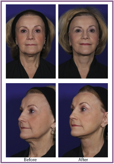 Facelift Denver Before and After | Denver Patient