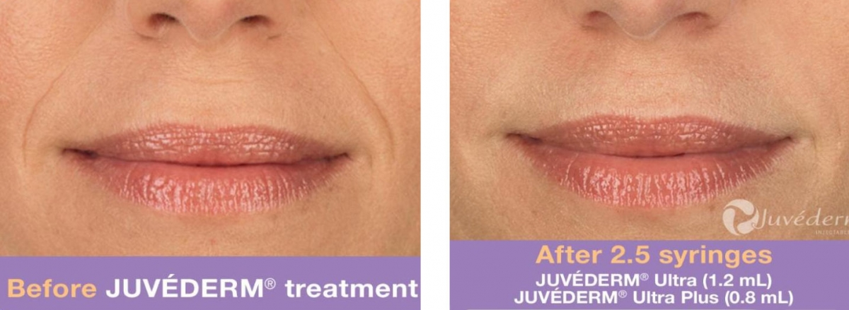 Juvederm - Before & After 2