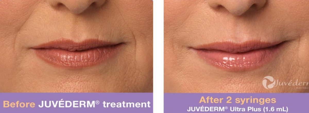 Juvenderm - Before & After 3