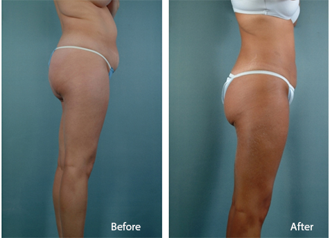 Denver Liposuction Patient Before and After Results