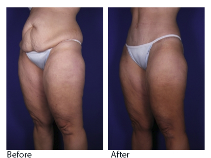 Tummy Tuck Denver | Abdominoplasty Highland Ranch