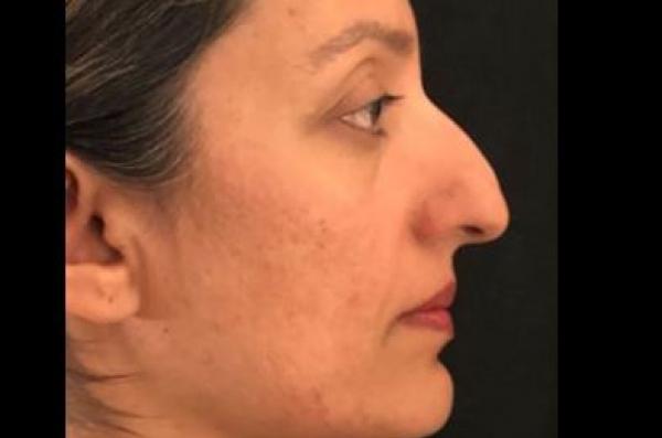 Dr. Kamran Dastoury Rhinoplasty