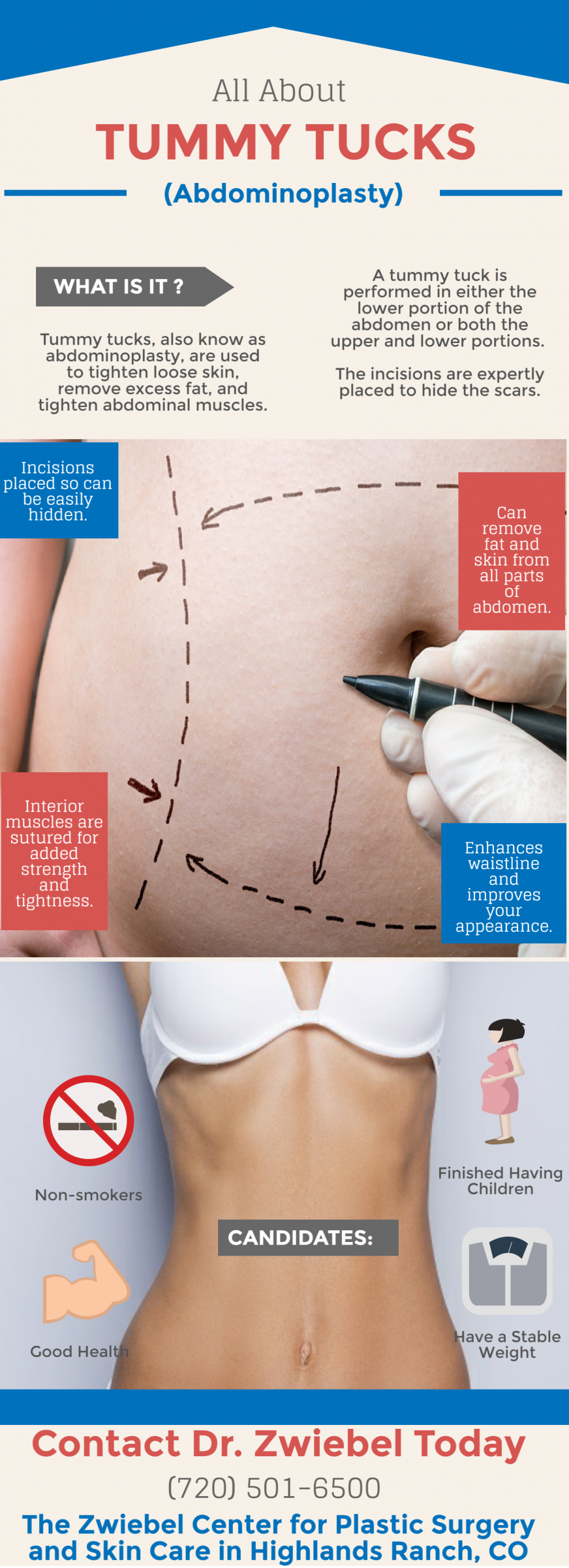 Tummy Tucks | Abdominoplasty | Plastic Surgery | Highlands Ranch, CO